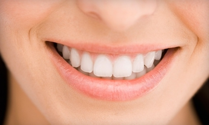 SmileFusion Teeth Whitening: $32 for a Fast-Acting Teeth-Whitening Combo Kit from SmileFusion Teeth Whitening