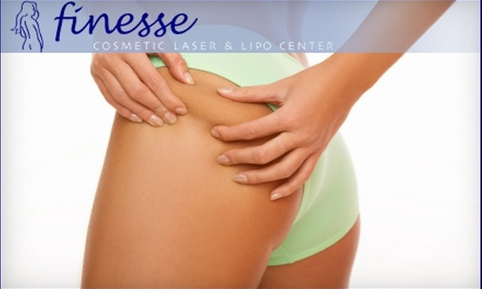 Finesse Cosmetic Laser & Lipo Center - Warrendale: $195 for Three VelaShape Treatments at Finesse Cosmetic Laser & Lipo Center in Waltham ($1,050 Value)