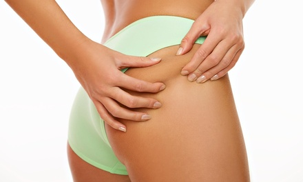 One or Two Ultrasonic Lipo and Cellulite Treatments at Body Refine (68% Off)