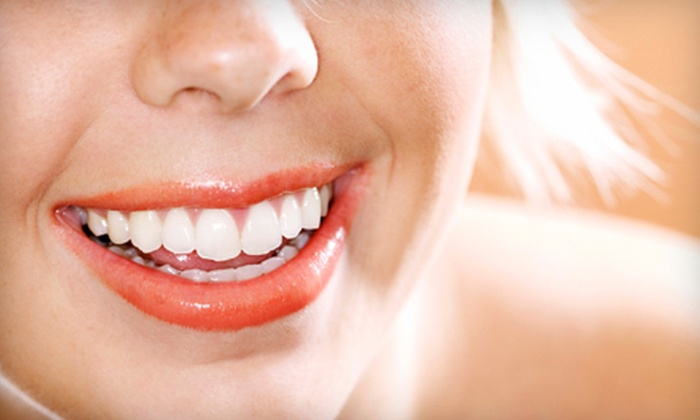 Planet Beach Contempo Spa - Spokane Valley: $99 for Two Whiter Image Teeth-Whitening Treatments at Planet Beach Contempo Spa in Spokane Valley (Up to $218 Value)