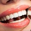 68% Off In-Office Teeth Whitening