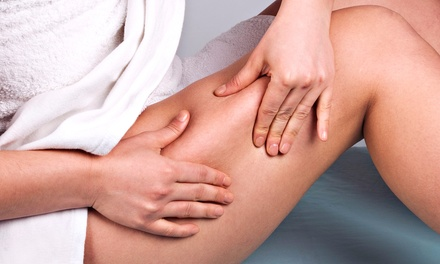 6, 9, or 12 Zerona Laser Body-Contouring Treatments at Refine Medical Spa (Up to 68% Off)