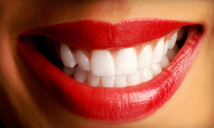 Gleaming Smiles - Alum Rock: 40- or 60-Minute Teeth-Whitening Session at Gleaming Smiles (Up to 55% Off)