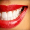 Up to 55% Off Teeth Whitening