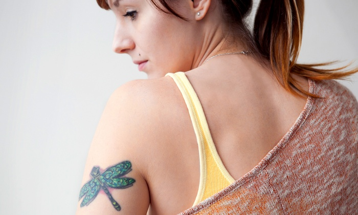 Amoré Laser - Amore Laser: Three Laser Tattoo-Removal Treatments for a 2x2-, 4x4-, or 6x6-Inch Area at Amoré Laser (Up to 72% Off)