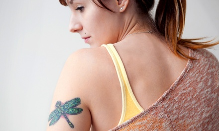 Three Laser Tattoo-Removal Treatments for a 2x2-, 4x4-, or 6x6-Inch Area at Amoré Laser (Up to 72% Off)