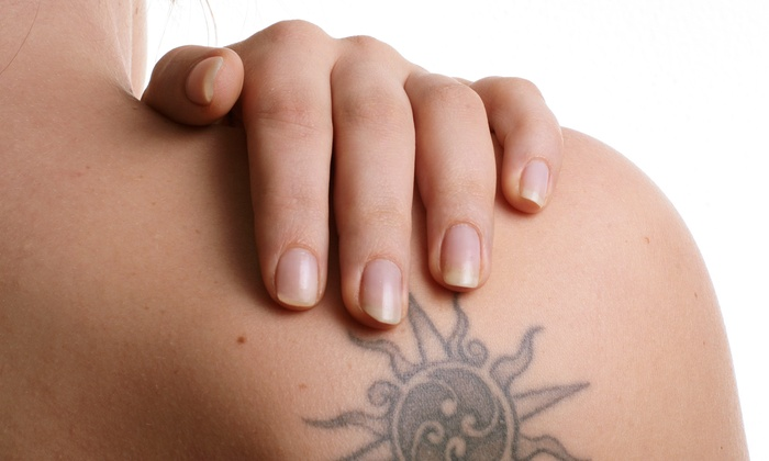 Laser and Spa Techniques - Rockville Centre: One, Three, or Six Laser Tattoo-Removal Sessions at Laser and Spa Techniques in Rockville Centre (Up to 73% Off)