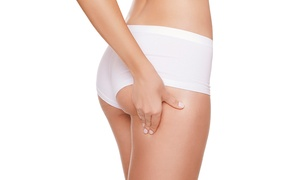 Xtendolicious: Laser Lipolysis: Three (£39) or Six (£69) Sessions at Xtendolicious (Up to 62% Off)