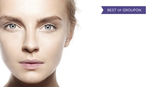 Potomac Facial Plastic Surgery: One, Two, or Three Microdermabrasion Treatments at Potomac Facial Plastic Surgery (Up to 69% Off)