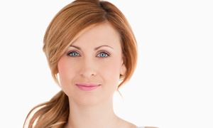 Cherry Blossom: One, Three, or Five 30-Minute Microdermabrasion Treatments at Cherry Blossom (Up to 70% Off)