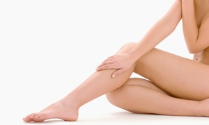 Mari Ann Laser Care: One, Three, or Six Spider-Vein Treatments at Mari Ann Laser Care (Up to 86% Off)