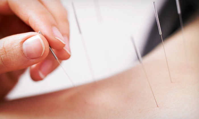 Scott Klein Acupuncture - Hazelwood: $50 for $90 Worth of Acupuncture at Scott Klein Acupuncture