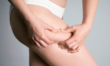 Three, Five, or Seven Endermologie Cellulite Treatments at On Cloud Nine Day Spa (Up to 66% Off)