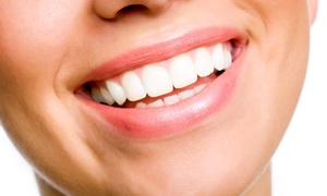Advanced Dental Center: Boost Teeth Whitening, an Exam, and X-rays for One or Two at Advanced Dental Center (Up to 78% Off)