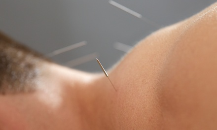 One, Three, or Five 60-Minute Acupuncture Sessions with Stephen Potter at Cross Currents Clinic (Up to 58% Off)
