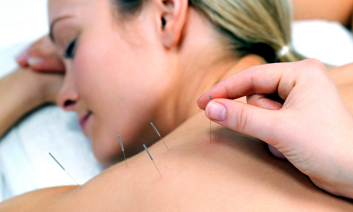 Whole Health Acupuncture - Crossing At Onion Creeek: One, Three, or Six Acupuncture Treatments at Whole Health Acupuncture (Up to 77% Off)