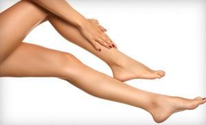 The Skin Center Medical Spa: One or Two Spider- or Varicose-Vein Sclerotherapy Treatments at The Skin Center Medical Spa (Up to 81% Off)