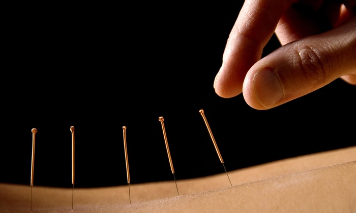ACN Wellness - Multiple Locations: One, Two, or Three Acupuncture Sessions with Consultation at ACN Wellness (Up to 76% Off)