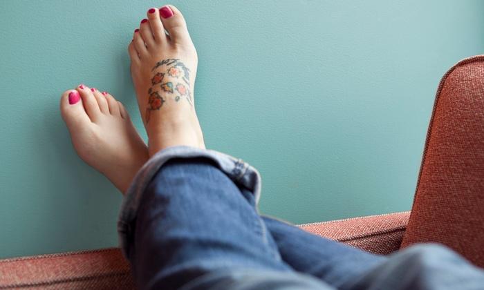 Advanced Laser Clinics - Oak Brook: Three Laser Tattoo-Removal Sessions on a Small, Medium, or Large Area at Advanced Laser Clinics (50% Off)
