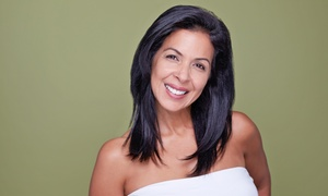 Birmingham Cosmetic Surgery & Vein Center: 4 or 6 Microdermabrasion Packages at Birmingham Cosmetic Surgery & Vein Center (Up to 82% Off)