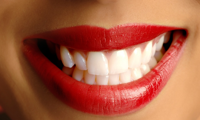 Do Beaming White - Burnaby: Teeth-Whitening Treatments at Do Beaming White (Up to 65% Off). Three Options Available.