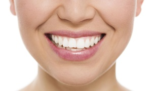 The Face & Body Clinique: $49 for In-Office Teeth Whitening at The Face & Body Clinique