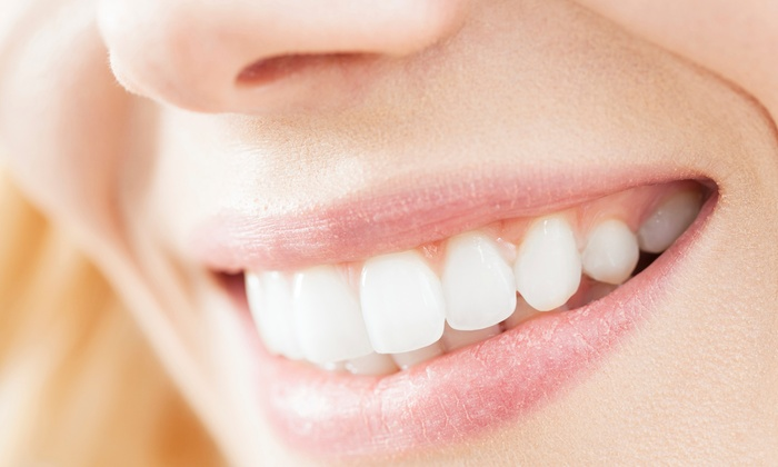 Smile Sciences: Bubblegum-Flavored or Regular Teeth-Whitening Kit from Smile Sciences (90% Off)