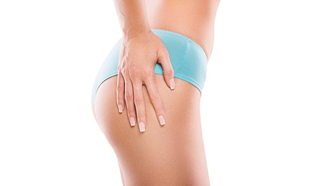 Cryogenic Lipolysis on One or Two Areas from £99 at HDC