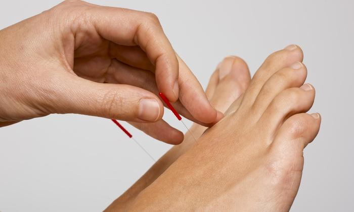 El Dorado Community Acupuncture - Shingle Springs: Three Acupuncture Treatments from El Dorado Community Acupuncture (44% Off)