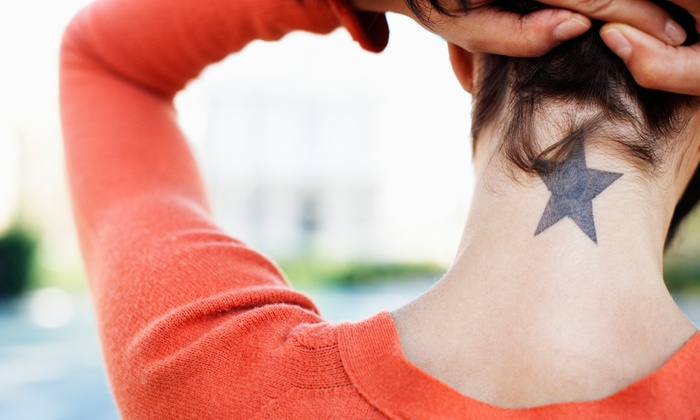Bare Tattoo Removal - South Loop: Three Tattoo-Removal Sessions for Areas Up to 2, 4 or 6 Inches at Bare Tattoo Removal (Up to 72% Off)