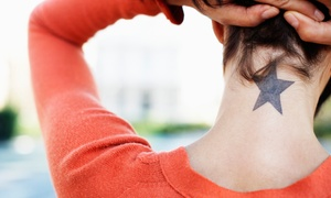 Ultrapulse Studios Ltd: Laser Tattoo Removal: Three Sessions for £39 at Ultrapulse Studios (71% Off)