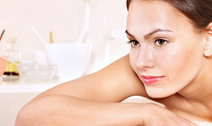 Spa Medica on Main: One or Three Custom Chemical Peels with Consultation at Spa Medica on Main (Up to 57% Off)