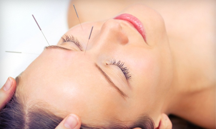 Russell Family Acupuncture - Northwest Novato: $999 for Two Weeks of Eye-Condition Acupuncture Treatments at Russell Family Acupuncture in Petaluma ($3,500 Value)