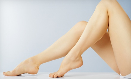 $89 for a Sclerotherapy Treatment for Leg Veins at The Cosmetic Vein Center ($350 Value)