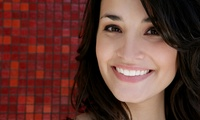 GROUPON: Up to 63% Off Complete Invisalign Treatment Universal Smiles DC
