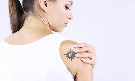 1x oder 2x Laserbehandlung zur Tattooentfernung an kleiner oder großer Zone bei Estetic Line (bis zu 77% sparen*)
