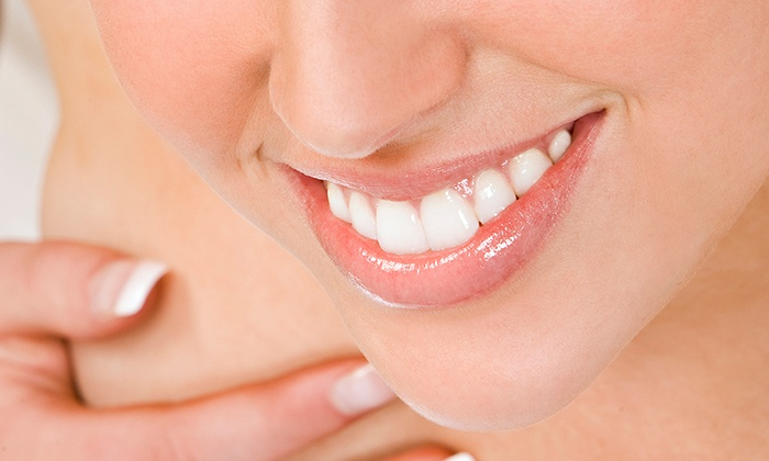Bethesda Dental - Murray Hill: $139 for a Venus Teeth-Whitening Treatment at Bethesda Dental ($700 Value)