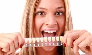 Beauty Tech Wiesbaden: 1x oder 2x ca. 30 Min. kosmetisches Zahn-Bleaching bei Beauty Tech Wiesbaden (bis zu 77% sparen*)