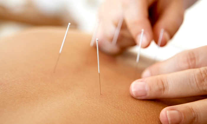 Holistic Life Center - Rockville: Acupuncture or No Needle Electro Acupoint with a 30-Minute Consultation at Holistic Life Center (Up to 80% Off)