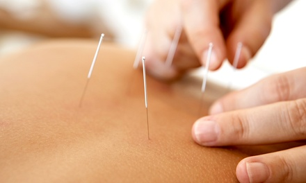 One or Two Acupuncture Treatments with a 30-Minute Consultation at Holistic Life Center (Up to 83% Off)