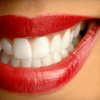 Half Off PearlBrite Teeth Whitening