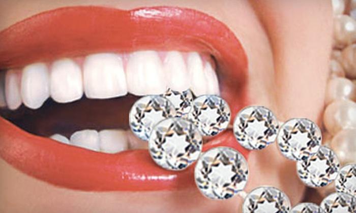 Bling Dental: Diamond Elite Ultrasonic Toothbrush or Icing At-Home Whitening Kit from Bling Dental