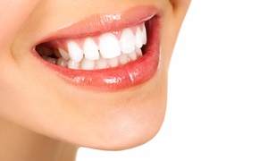 SeaTac Family Dentistry: $50 for Dental Exam with X-Rays, Fluoride, and Cleaning at SeaTac Family Dentistry ($337 Off)