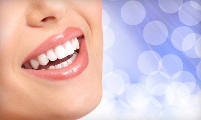 Icing Teeth Whitening: $59 for an In-Home Icing Teeth Whitening from Bling Dental ($199 Value)