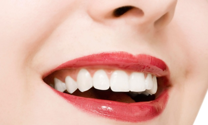 Vintage Dental Spa and El Dorado Family Dentistry & Orthodontics - Multiple Locations: Dental Exam and X-rays with Cleaning or Dental Exam and X-rays with Tooth-Colored Filling (Up to 90% Off)