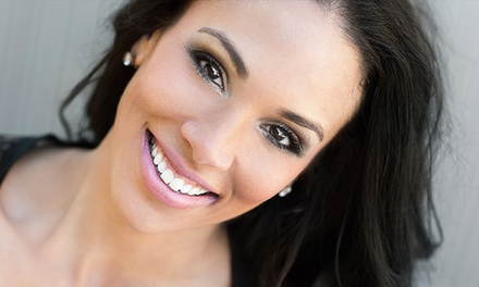 Teeth-Whitening Treatment with Optional 2 Touch-Ups at DaVinci Cosmetic Teeth Whitening of Boise(Up to 65% Off)