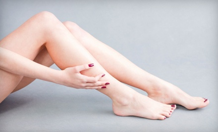 Two Full-Leg Spider-Vein-Removal Treatments - NV Medical Spa in Barrie