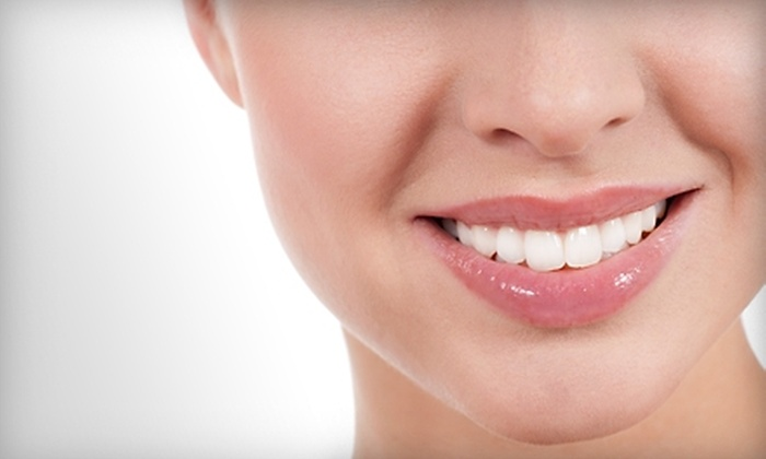 A's Laser Nail and Hair Studio - Moose Jaw: $60 for a Teeth-Whitening Treatment at A's Laser Nail and Hair Studio in Moose Jaw ($132.50 Value)