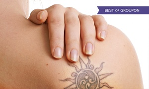 Bodibeautiful: Three or Six Laser Tattoo Removal Sessions at Bodi Beautiful (Up to 74% Off)