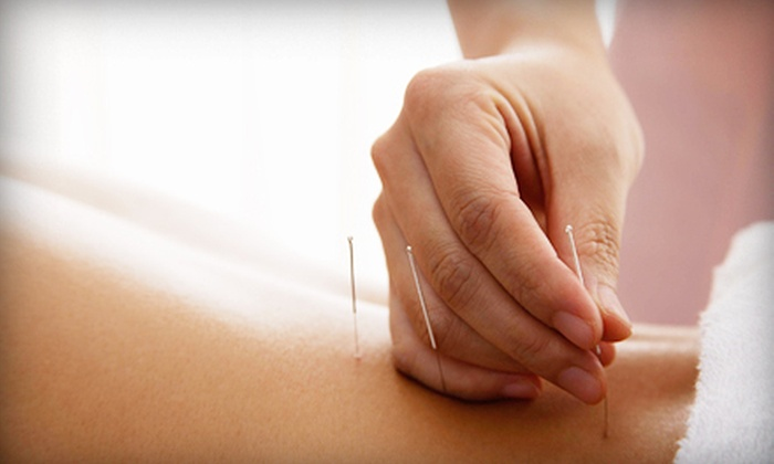 The Fix Community Acupuncture - Ward 2: One or Three Acupuncture Treatments at The Fix Community Acupuncture (Up to 57% Off)